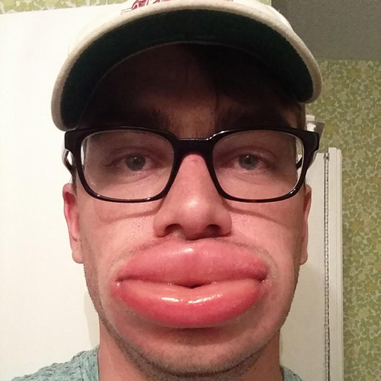 Большие губы прикол картинка