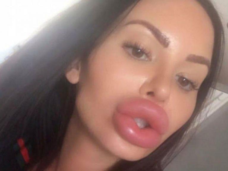 большие губы ххх - 7