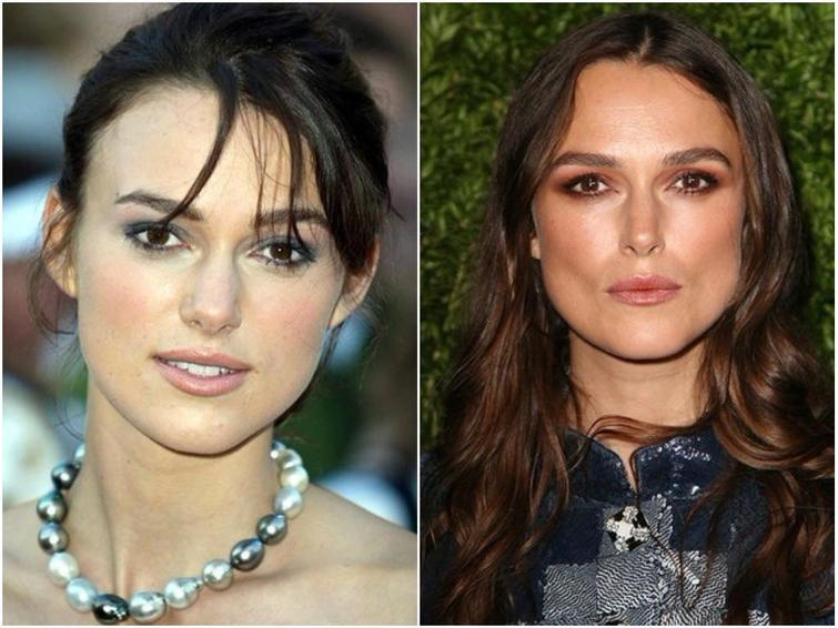 ринопластика звезд фото до и после нос каждой нас есть