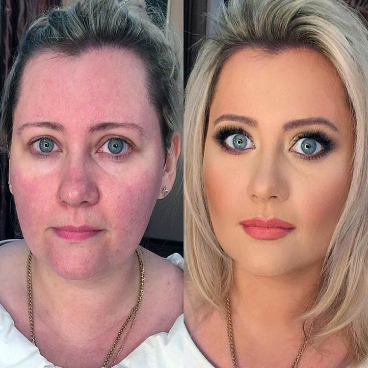Катя варнава фото до и после пластики сама